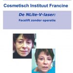 NLite V-laser