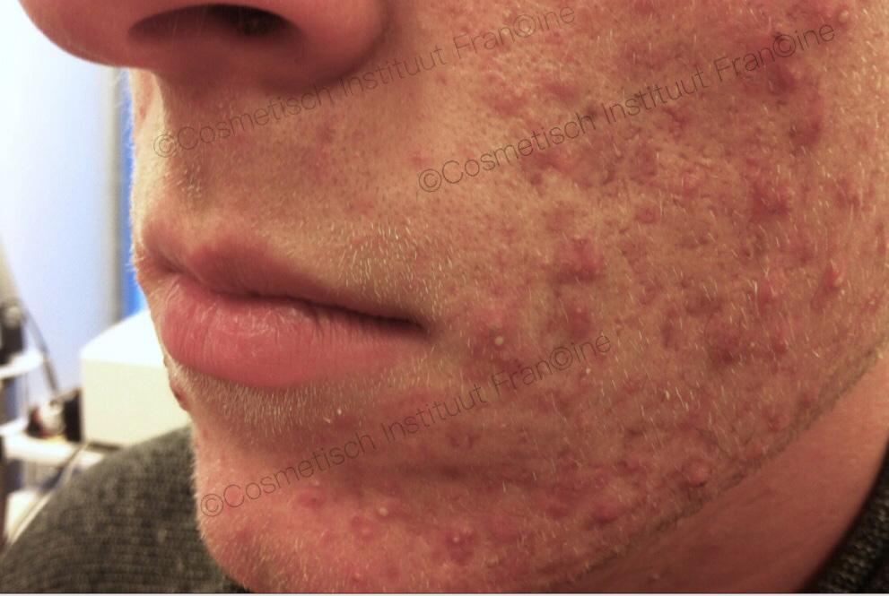 acne voor 2