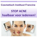 acne foto