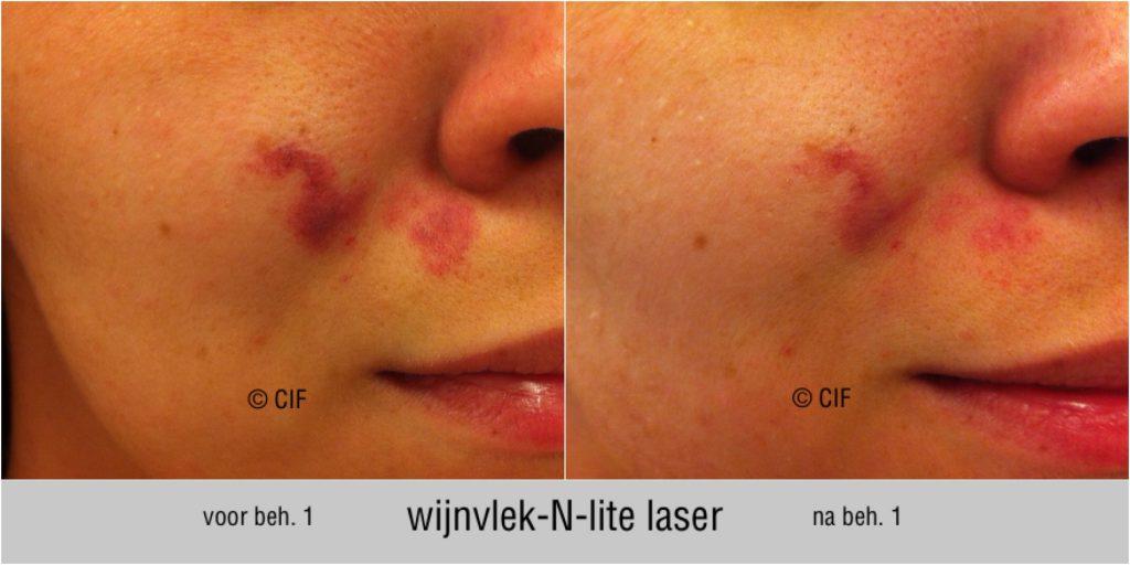 NLite-V 2