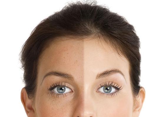pigmentbehandelingen 1